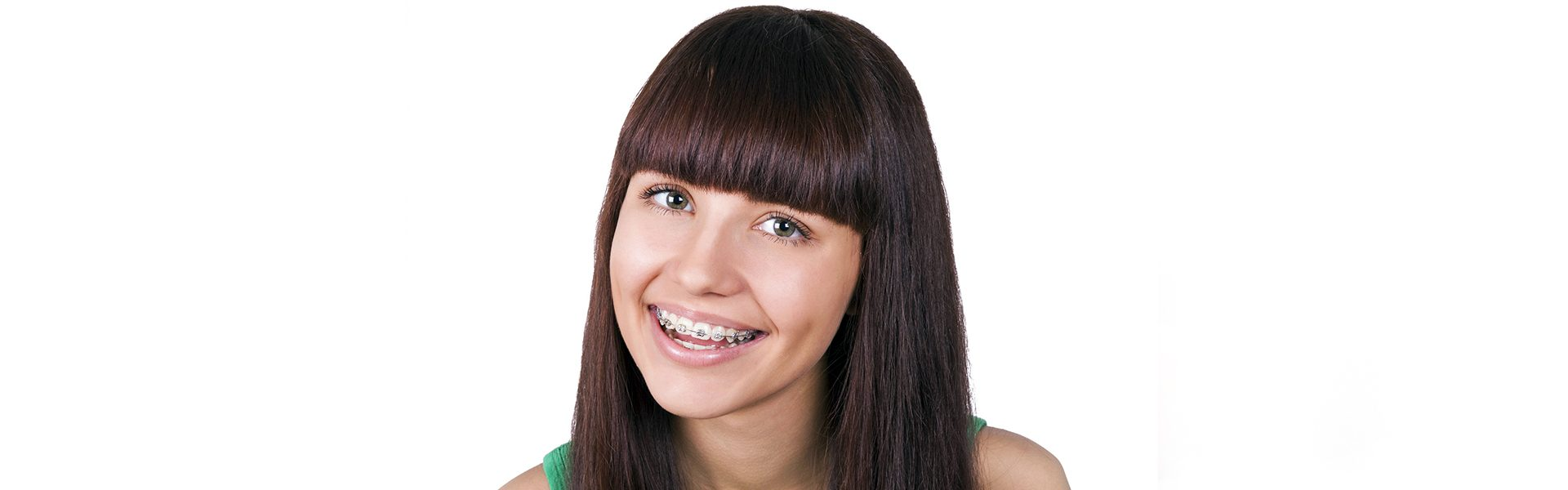 Why You Should Align Your Teeth with Accelerated Braces